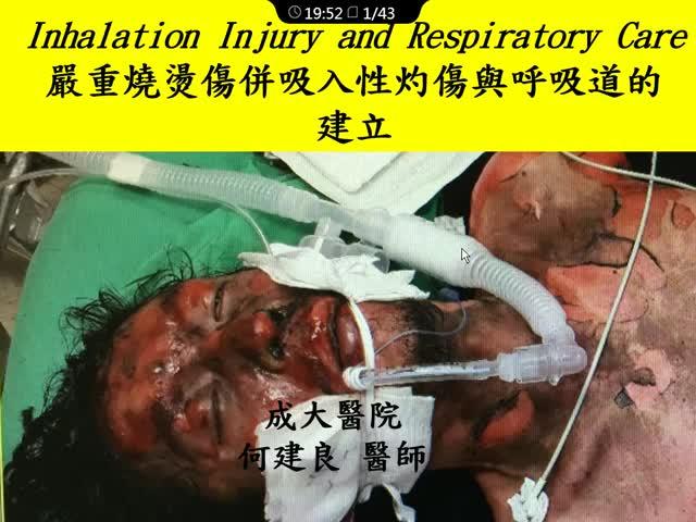 严重烧烫伤及吸入性呛伤时呼吸道的建立与维持