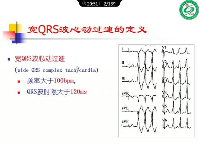 宽QRS波心动过速的鉴别诊断与消融策略