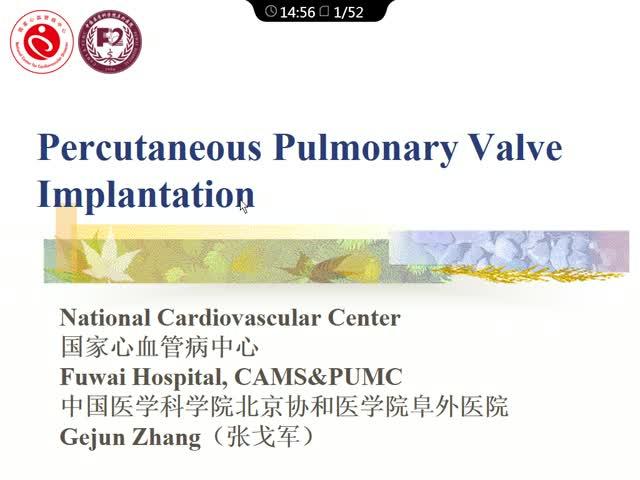 经皮肺动脉瓣置换术的发展和现状