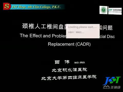 颈椎人工间盘置换术的效果和问题