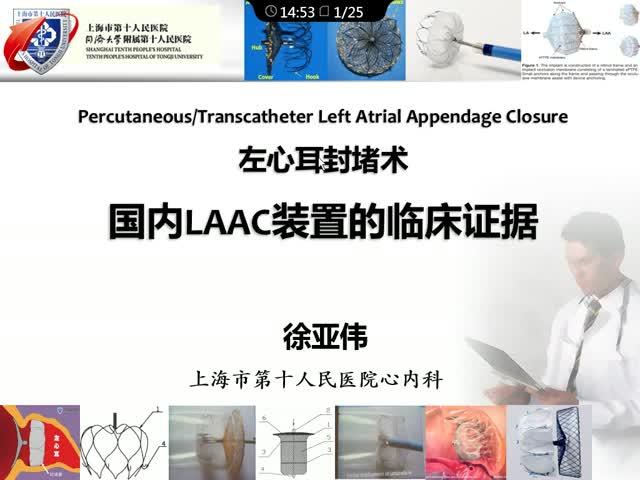左心耳封堵装置—从研发到应用