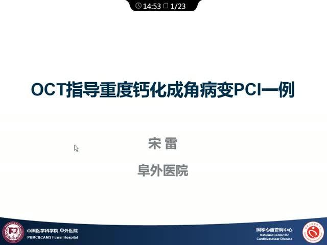 应用前沿:OCT在钙化病变中应用一例