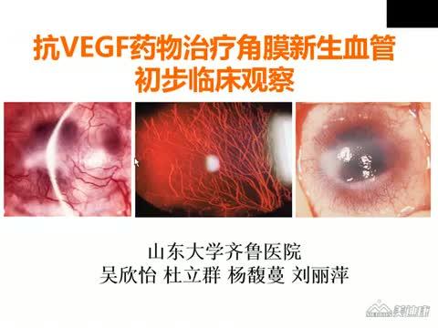 抗VEGF药物治疗角膜新生血管初步临床观察