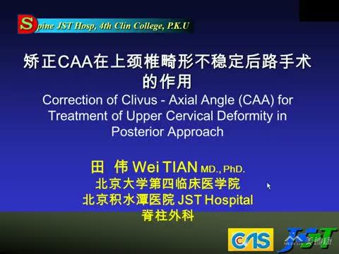 矫正CAA角在上颈椎畸形不稳定后路手术的作用