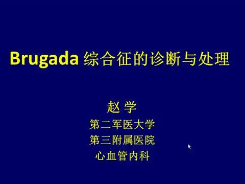 Brugada综合征的临床特征与处理原则