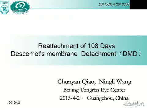 Reattachment of 108 Days ​​ Descemet Detachment