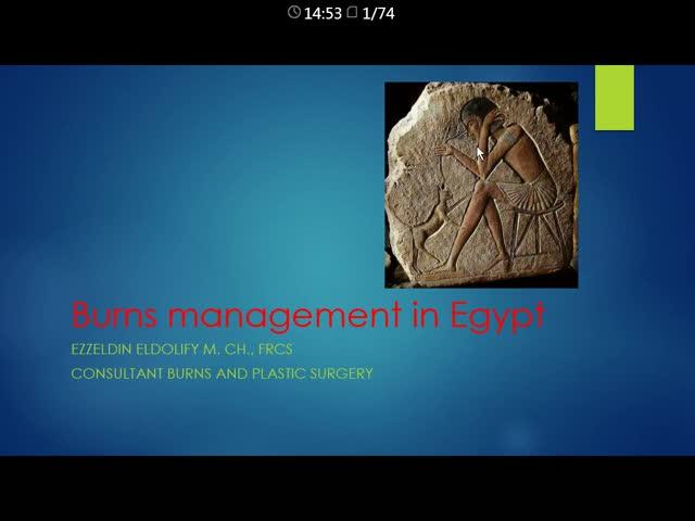 Burns Management in Egypt