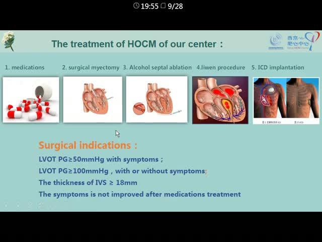 肥厚梗阻性心肌病家系及治疗