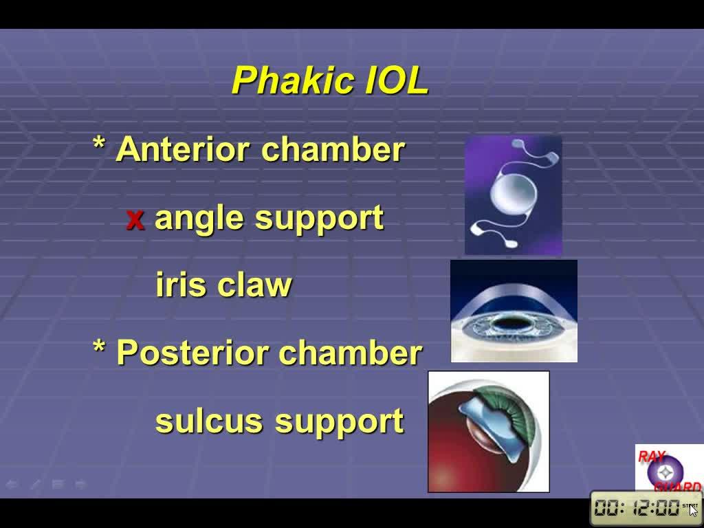 Phakic IOL Implantation in Taiwan