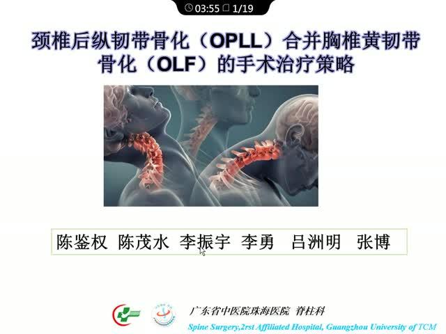 《颈椎后纵韧带骨化(OPLL)合并胸椎黄韧带骨化症(OLF)的手术治疗策略》
