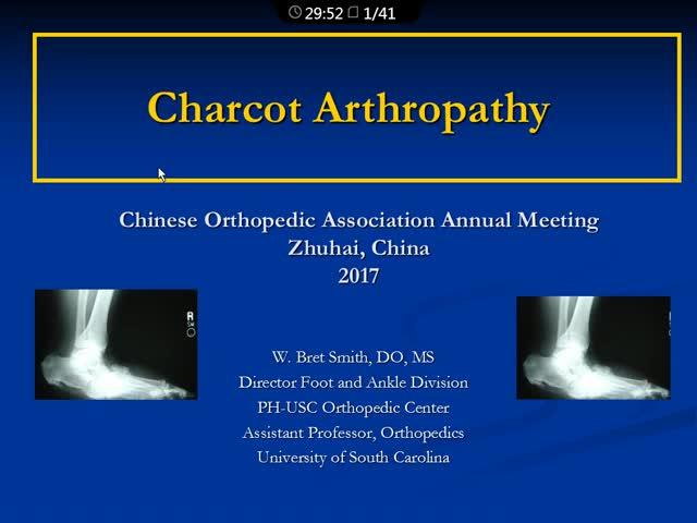 Charcot关节病:目前的认识和治疗选择