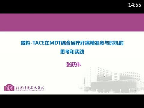 微粒-TACE在MDT综合治疗肝癌精准参与时机的探讨