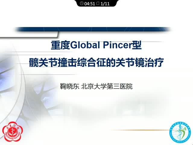 重度Global Pincer型髋关节撞击综合征的关节镜治疗